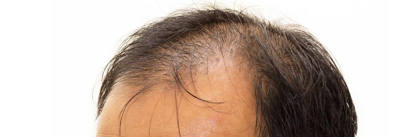 Medicina cabello