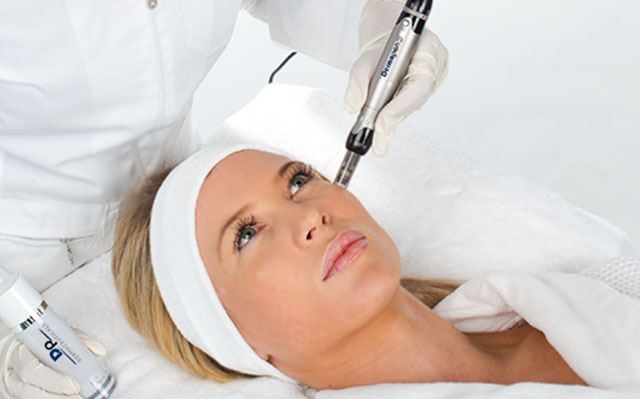 Microneedling tratamiento rejuvenecedor
