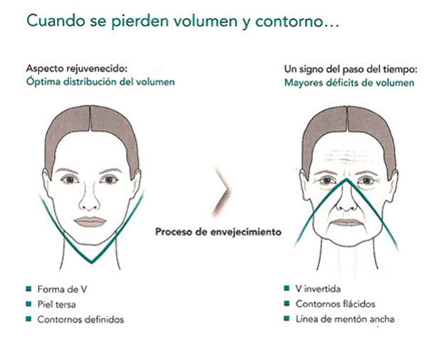 Voluminización Facial