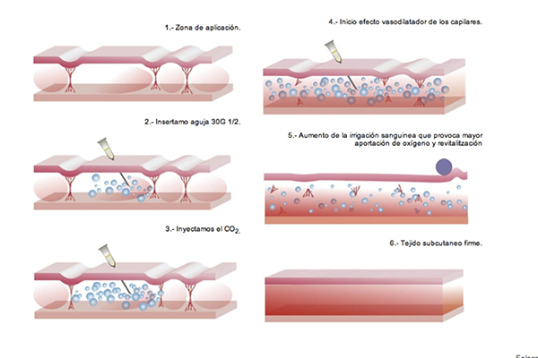 tratamiento carboxiterapia