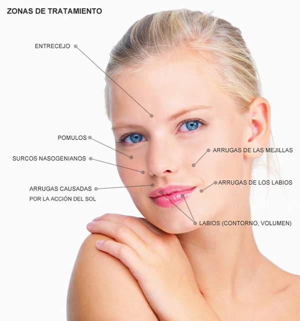 Zonas de tratamiento Voluminización Facial