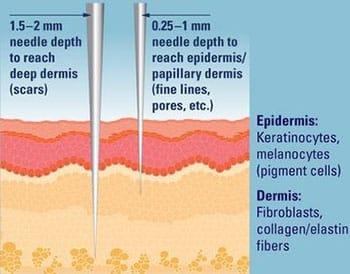 rejuvenecimiento de la piel con microneedling