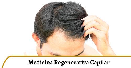 medicina regenerativa capilar