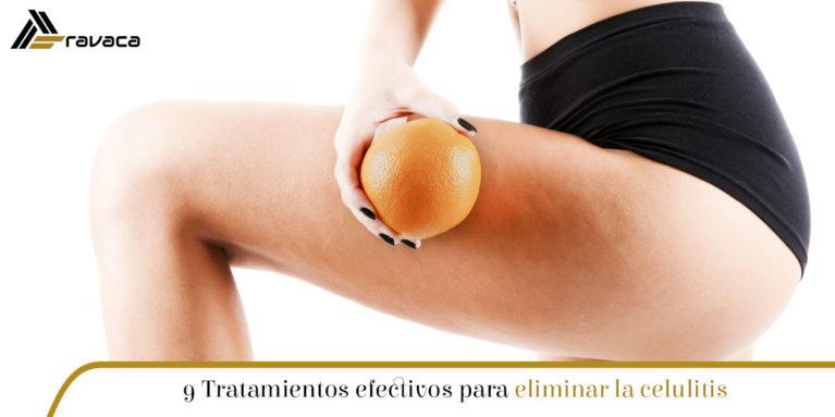 tratamientos efectivos para eliminar la celulitis