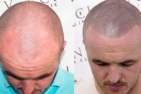 resultados antes y después técnica FUE