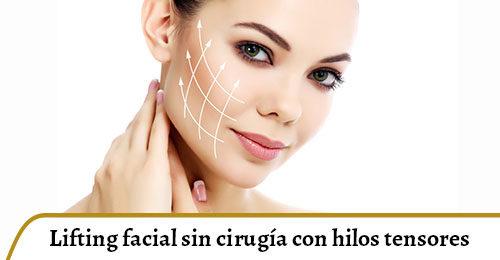 lifting facial con hilos tensores