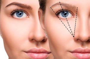 Elevar la ceja con hilos tensores