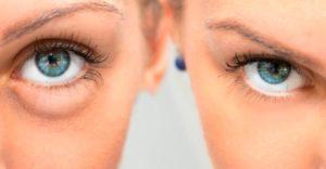Eliminar la grasa de las bolsas de los ojos con biopéptidos