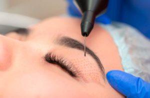 Reducir el párpado superior sin cirugía