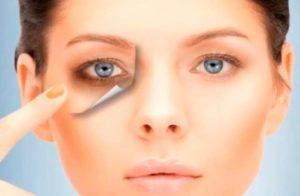 Láser Vascular para reducir ojeras